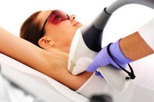 depilazione laser permanente